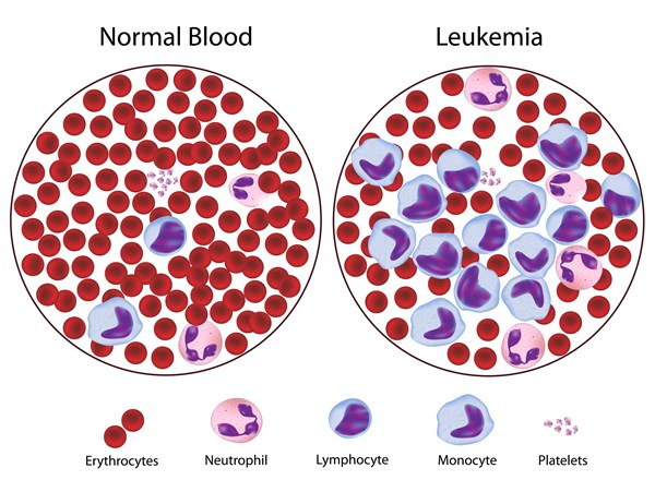 Scientists-find-new-possible-cure-for-leukemia