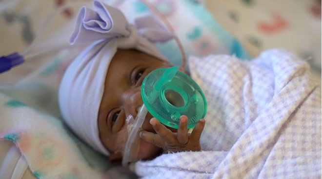 World's Tiniest Baby Was the Size of an Apple. Here's How She Survived.